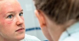 Gül Hastalığı: Cilt Döküntüleriniz Varsa Dikkat!