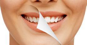 Diş Beyazlatma Hakkında Bilmeniz Gereken Her Şey